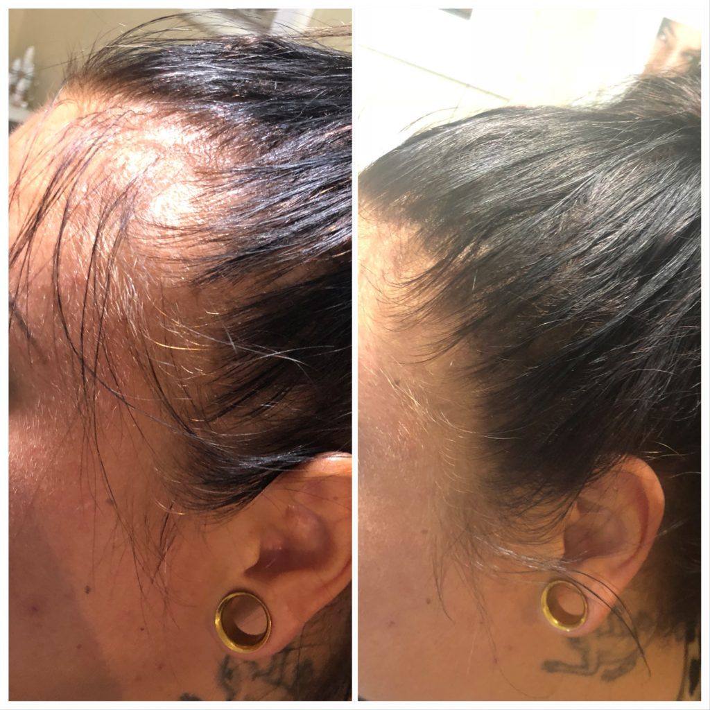 Tattoo tatovering tattoostudio piercing hedehusene hudpleje diamantslibning microdermabrasion piercing tattoo tatovering tattoostudio skønhedssalon mesoterapi tatoveringsfjernelse laserbehandling laserremove piercingsmykker dybderens frugtsyrebehandling lashlift Girlz inc girlz ink
