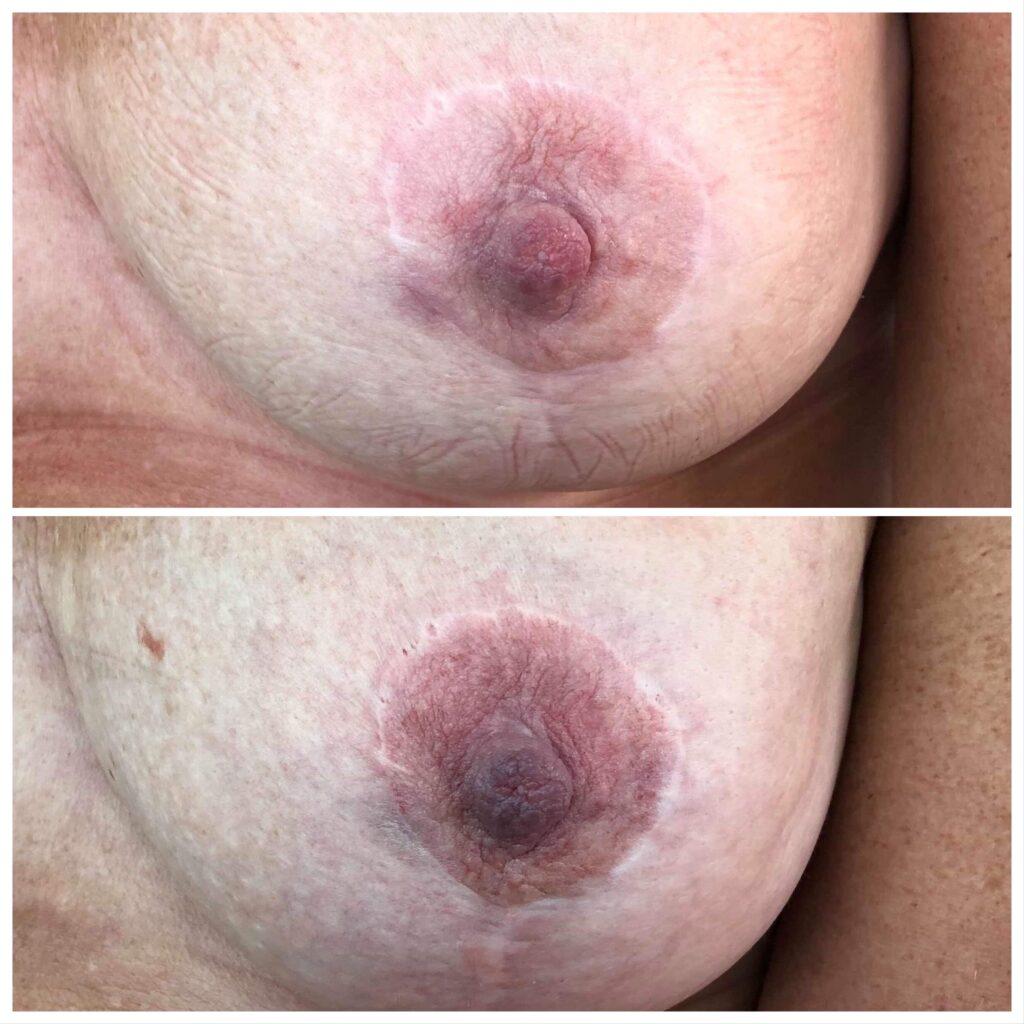 medicinsk tatovering areolatattoo 3d brystvorte tatoveret brystvorte mastektomitattoo enhanced by malina girlz inc